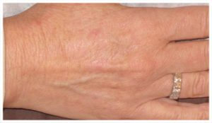 Aging Hands AFTER (actual patient)