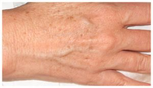 Aging Hands BEFORE (actual patient)