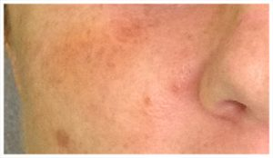 sun damage brown spots (actual patient)