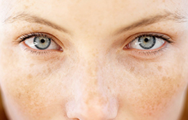 brown spot and sun damage treatments by anusha dahan at skin specifics medical spa in los angeles