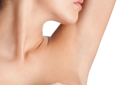 hyperhidrosis excesive under arm sweating treatments at skin specifics med spa in los angeles