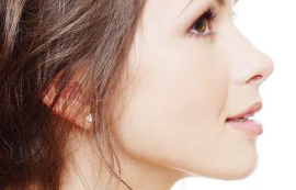 nose reshaping with juvederm by anusha at skin specifics los angeles med spa