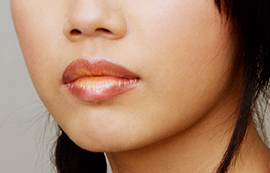 lip enhancement with juvederm by anusha at skin specifics medical spa in los angeles