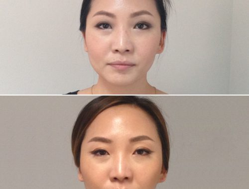 Facial Reshaping with botox by anusha dahan at skin specifics in los angeles