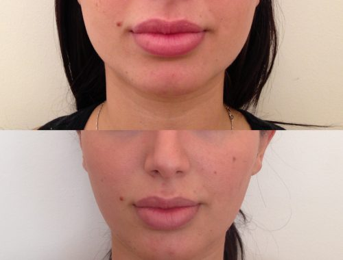 Facial reshaping/masseter reduction with botox by anusha dahan at skin specifics med spa in los angeles