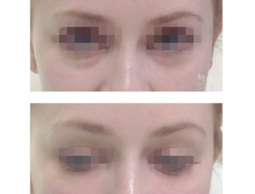 Tear Trough/Dark Circles under the eye treated with belotero balance by anusha dahan at skin specifics medical spa in los angeles