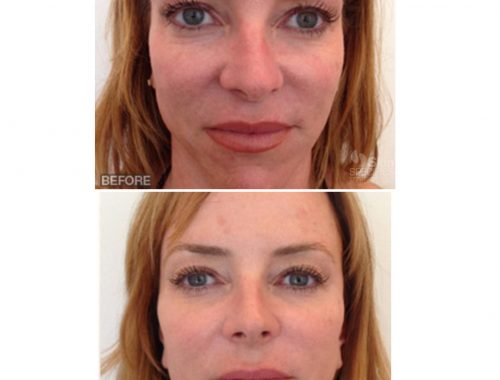 Full Face Rejuvenation with botox, belotero and juvederm by anusha dahan at skin specifics medical spa in los angeles