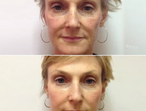 Total Face Rejuvenation. IPL Photofacial, Juvederm Ultra Plus and Ultra XC, Botox. by anusha dahan at skin specifics med spa in los angeles