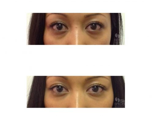 Teat Trough - Dark Circles with belotero by anusha dahan at skin specifics medical spa in los angeles