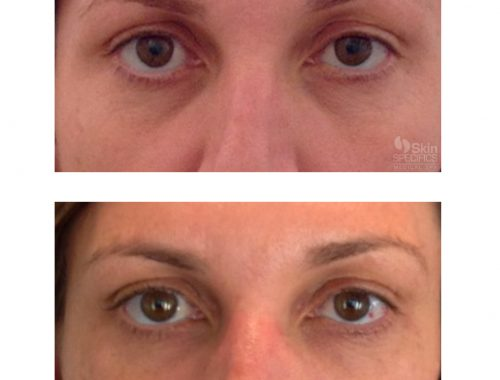 Tear trough-dark circles with belotero balance by anusha dahan at skin specifics med spa in los angeles