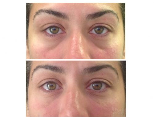 Tear trough-Dark circles with belotero balance by anusha dahan at skin specifics medical spa in los angeles