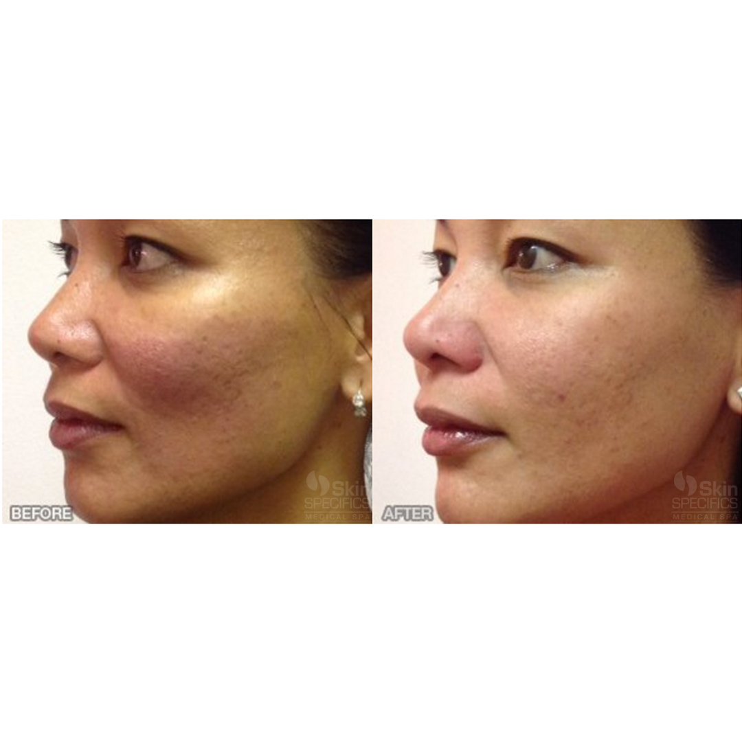 Cheek enhancement with juvederm and botox by anusha dahan at skin specifics med spa in los angeles