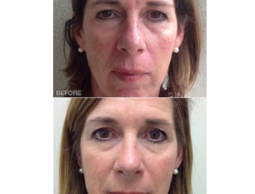 IPL photofacial for sun damage at skin specifics med spa in los angeles