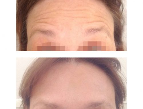 Forehead wrinkles treated with botox by anusha dahan at skin specifics med spa in los angeles