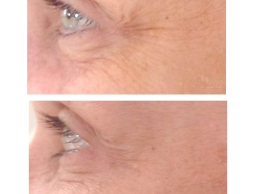 crows feet - wrinkles around the eyes with botox by anusha dahan at skin specifics medical spa in los angeles