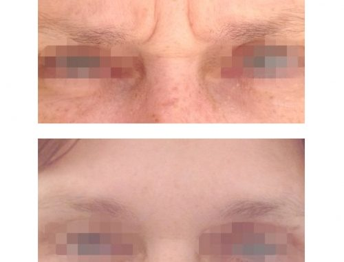 11 lines or frown lines treated with botox by anusha dahan at skin specifics medical spa in los angeles