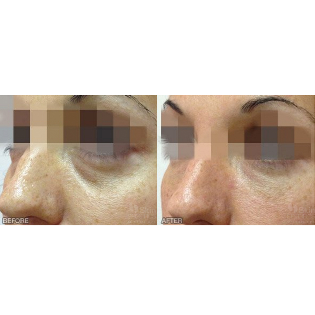 Tear Trough-Dark circles with restylane by anusha dahan at skin specifics med spa in los angeles