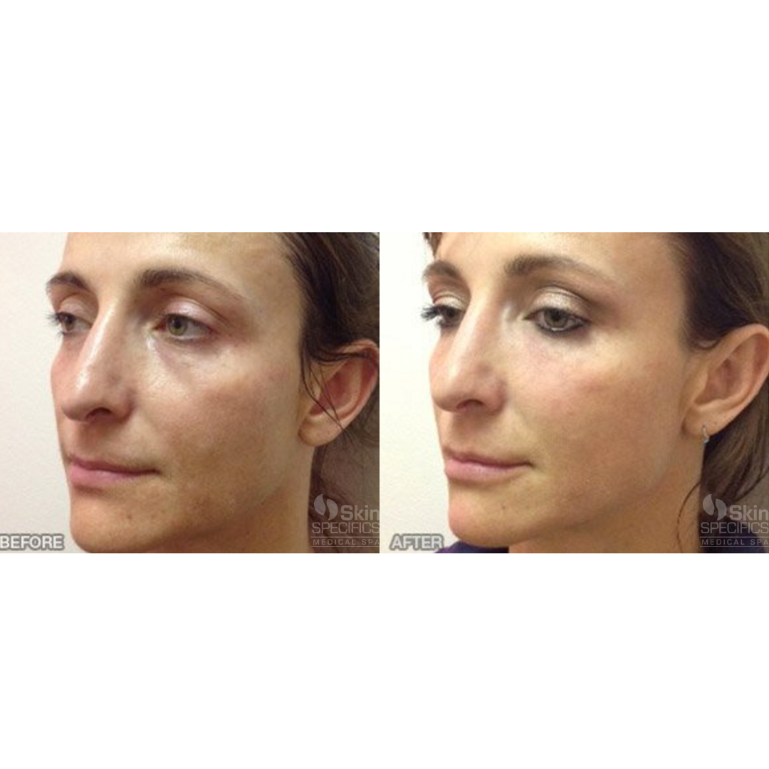 Tear trough- dark circles with juvederm and botox to upper face by anusha dahan at skin specifics med spa in la