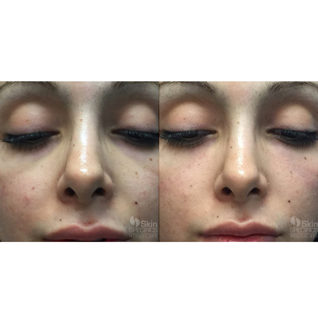 Mid face tear trough with juvederm voluma by anusha dahan at skin specifics med spa in los angeles