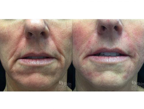 Lower face rejuvenation with juvederm by anusha dahan at skin specifics med spa in los angeles