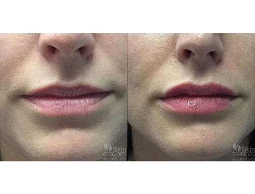 Lip enhancement - augmentation with juvederm by anusha dahan at skin specifics med spa in los angeles