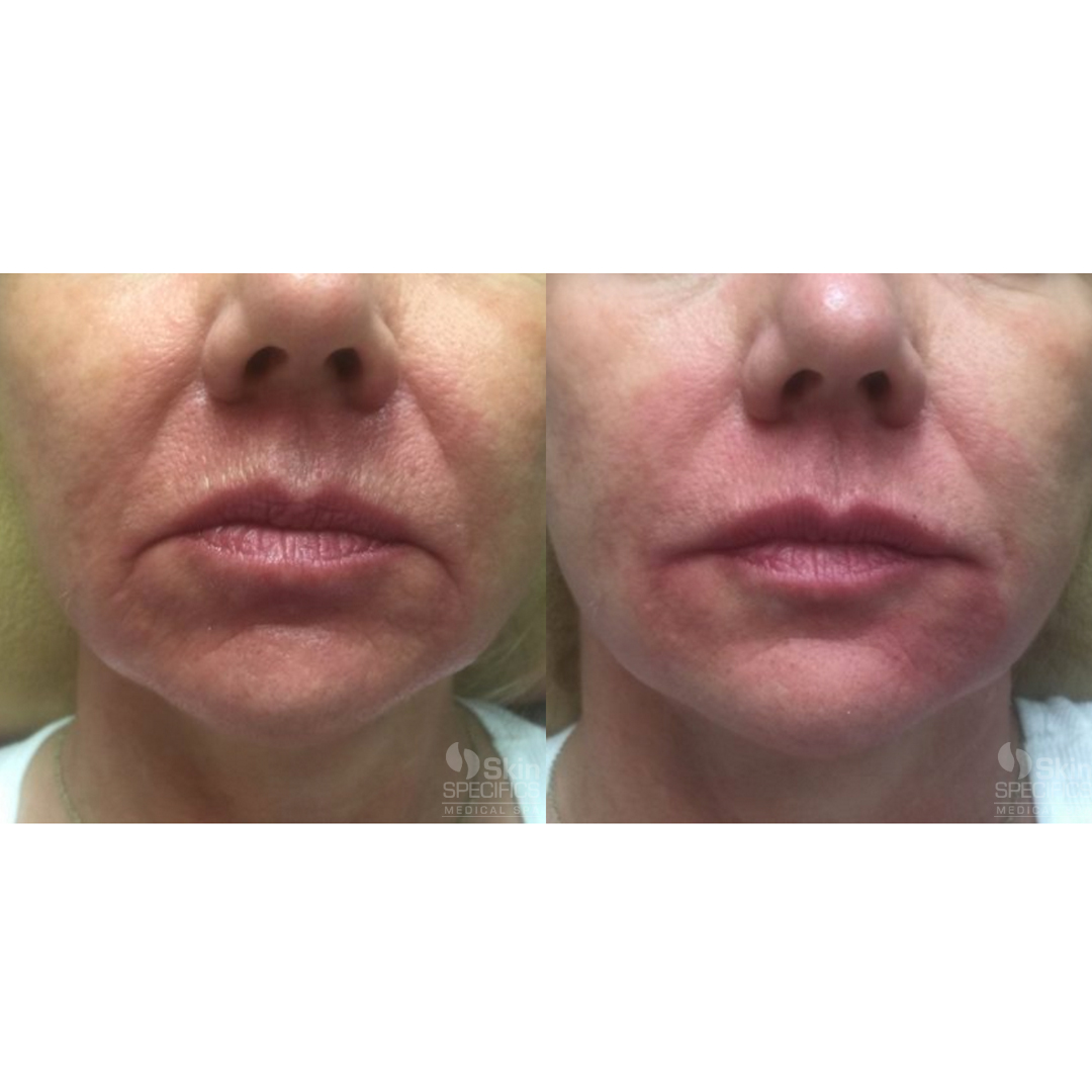 Juvederm before and after by anusha dahan at skin specifics med spa in los angeles