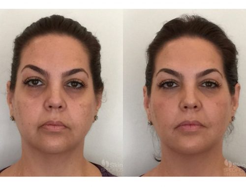 Weight loss treatment with juvederm voluma before and after by anusha dahan at skin specifics med spa in los angeles