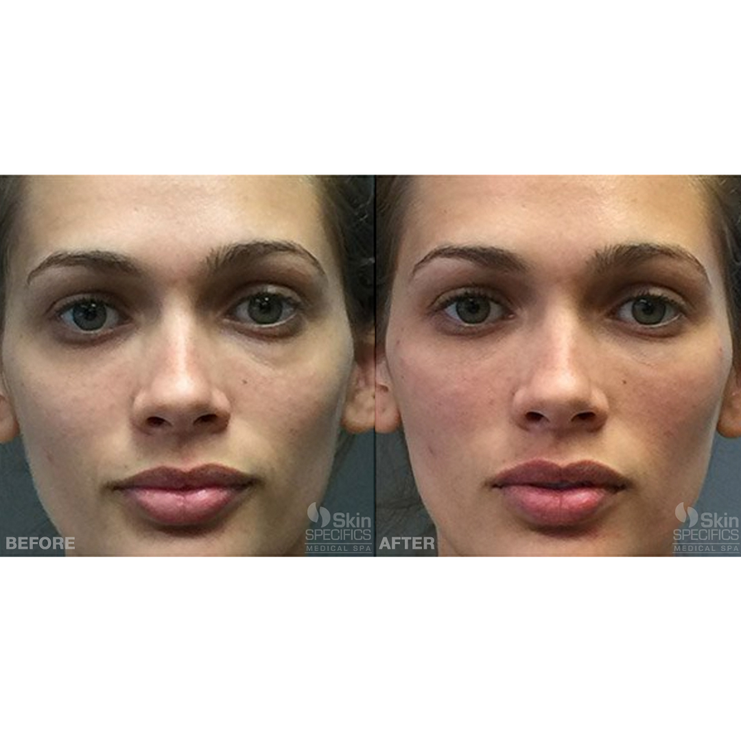 cheek enhancement with juvederm before and after by anusha dahan at skin specifics med spa in los angeles