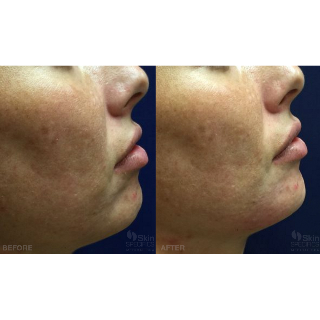 chin treatment with juvederm before and after by anusha dahan at skin specifics med spa in los angeles
