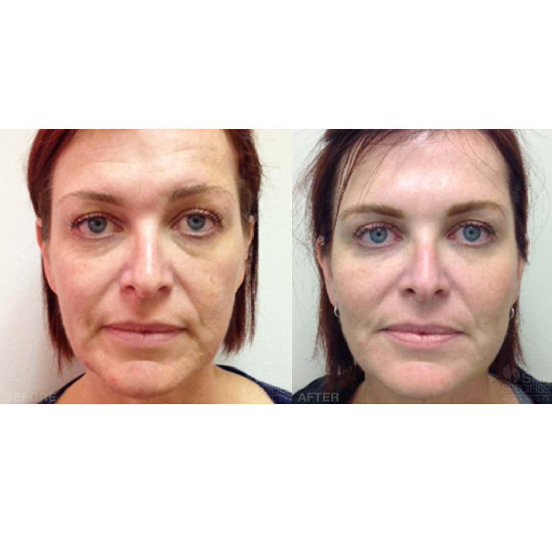 total face rejuvenation with juvederm and botox before and after by anusha dahan at skin specifics med spa in los angeles