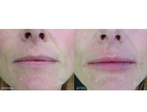 lip augmentation with juvederm before and after by anusha dahan at skin specifics med spa in los angeles