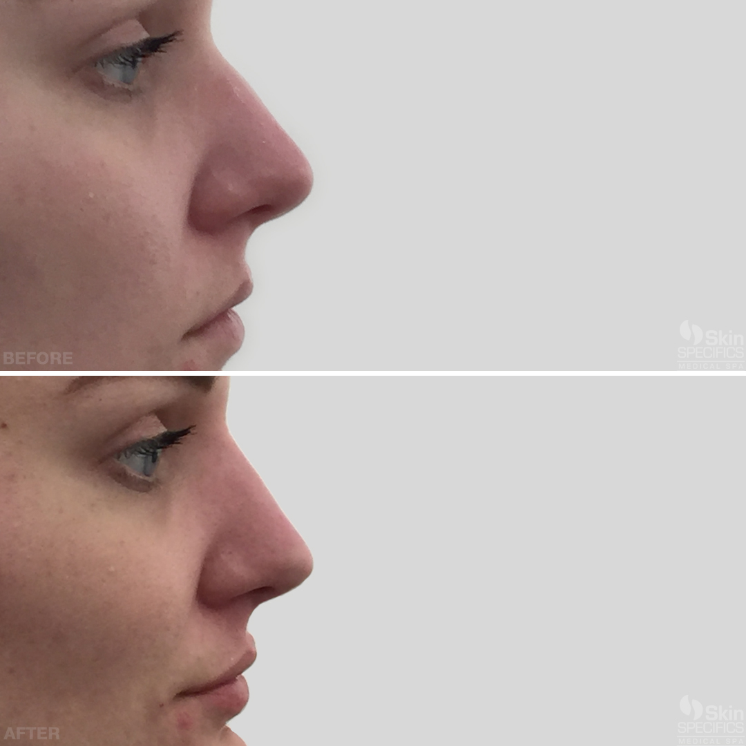 nose reshaping with juvederm before and after by anusha dahan at skin specifics med spa in los angeles