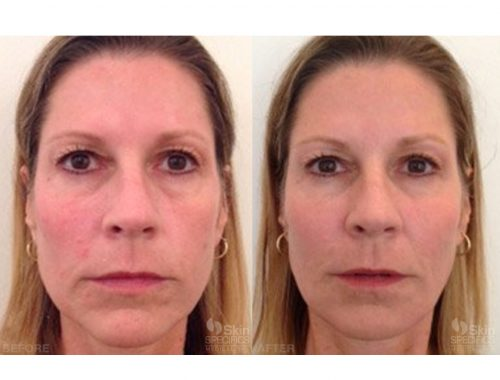 mid face and cheek enhancement with radiesse before and after by anusha dahan at skin specifics med spa in los angeles