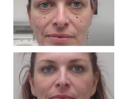 flat cheeks treatment with radiesse before and after by anusha dahan at skin specifics med spa in los angeles