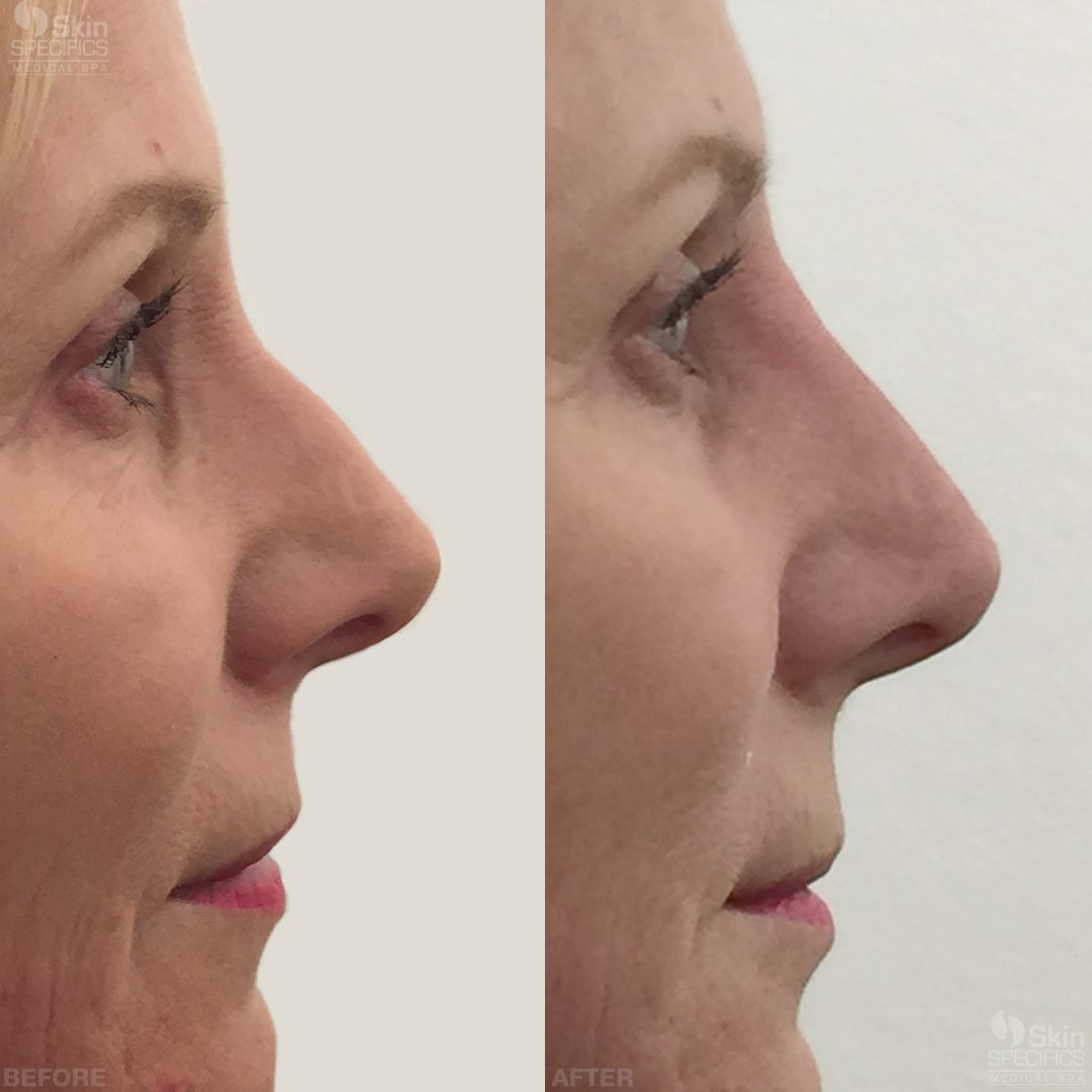 nose reshaping with restylane lyft before and after by anusha dahan at skin specifics med spa in los angeles