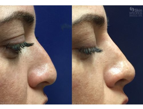 nose reshaping before and after by anusha dahan at skin specifics med spa in los angeles