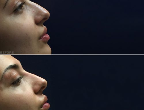 nose reshaping with retylane lyft before and after by anusha dahan at skin specifics med spa in los angeles