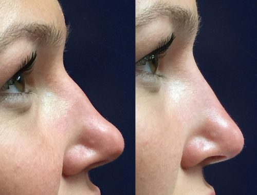 nose reshaping with juvederm ultra plus xc before and after by anusha dahan at skin specifics med spa in los angeles