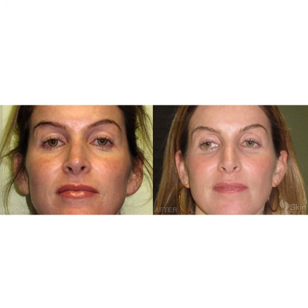 sun damage ipl photofacial treatment before and after by anusha dahan at skin specifics med spa in los angeles