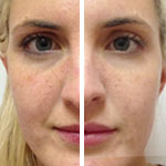 before and after skin rejuvenation with botox, juvederm by skin specifics med spa in los angeles