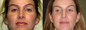 sun_damage_ipl_photofacial