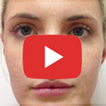 youtube videos of skin rejuvenation with botox and dermal fillers by skin specifics in los angeles
